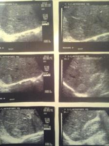 Angioame hepatice atipice: slab hiperecogene, izo- și hipoecogene; confirmate prin examenul CT; Arhivă personală; (2004-2008); Fotografiile mele; Ultrasonografie; publicat de Bot Eugen. 13.02.2014 22:31