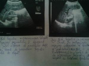Lob hepatic supranumerar Riedl (sau Riedel); Ultrasonografie; Ecografie în scară gri; Arhivă personală; 2004-2008; București; Fotografiile mele; Publicat de Bot Eugen. 23.04.2014; 19:39.