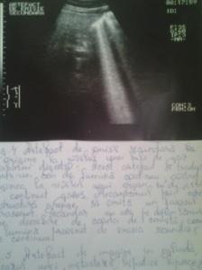 Artefact de emisie secundară; Artefacte în ultrasonografie; Ultrasonografie; Ecografie în scară gri; Arhivă personală; 2004-2008; București; publicat de Bot Eugen. 24.04.2014; 21:44