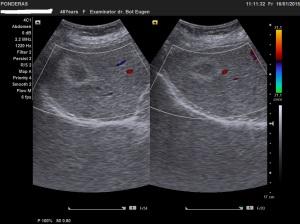Pacient fără antecedente neoplazice sau de hepatită, cu markeri virali hepatici negativi și transaminaze  normale, se prezintă la un control sonografic de rutină. Ecografic, ficatul prezintă textură omogenă, de tip steatozic (gradul I). În segmentul VIII, antero-superior și medial, lobul drept, se individualizează în secțiuni  ortogonale o imagine nodulară de consistență parenchimatoasă, neomogenă, cu aspect de nucleu hipoecogen delimitat la periferie printr-un chenar hiperecogen. Explorarea Doppler codificată color nu pune în evidență semnal vascular în centrul sau la periferia tumorii, iar vasele hepatice din vecinătate sunt permeabile și prezintă traiect regulat. Diagnosticul prezumtiv este de hemangiom atipic. Diagnosticul diferențial trebuie făcut cu o determinare secundară izolată. Ecografie în scară gri; Ecografie Doppler codificată color; Arhivă personală (2004-2015); Ultrasonografie; București; șoseaua Pantelimon 302; sectorul 2; 16.01.2015; 17:55 publicat de Bot Eugen