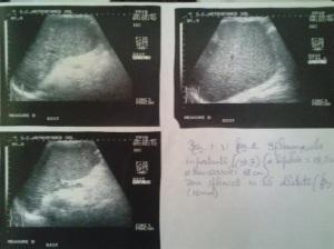 Despre cum splenomegalia consună cu ultrasunetele în cadrul sindromului de hipertensiune portală; Splenomegalie congestivă; Ciroză hepatica de etiologie virală C; Sindrom de hipertensiune portală; ectazii venoase perisplenice; Circulație colaterală perisplenică și interspleno-renală; Ecografie în scară gri; Arhivă personală ; 2004-2008; fotografiile mele; ultrasonografie; publicat de Bot Eugen. șoseaua Pantelimon 302; sectorul 2; București; 04.05.2015; 18:07