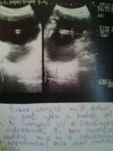 Sindrom de stază vezicală; faza decompensată; atrofie de perete vezical; Calculi vezicali; diverticuli vezicali; sediment vezical; sindrom obstructiv subvezical; adenom de prostată; sondă endovezicală;  sondă endovezicală, atrofie de perete vezical și stare (postTUR)  după rezecție transuretrală;; Ecografie în scară gri; Arhivă personală; 2004-2008; 2004-2015; Ultrasonografie; Fotografiile mele; șoseaua Pantelimon 302; sectorul 2; București. publicat de Bot Eugen. 02.06.2015; 21:06