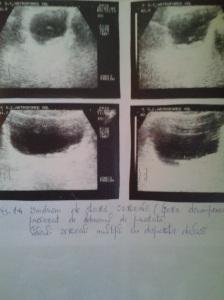 Sindrom de stază vezicală; faza decompensată; atrofie de perete vezical; Calculi vezicali; diverticuli vezicali; sediment vezical; sindrom obstructiv subvezical; adenom de prostată; sondă endovezicală;  litiază vezicală multiplă; Ecografie în scară gri; Arhivă personală; 2004-2008; 2004-2015; Ultrasonografie; Fotografiile mele; șoseaua Pantelimon 302; sectorul 2; București. publicat de Bot Eugen. 02.06.2015; 21:09