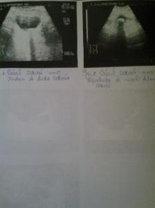 Sindrom de stază vezicală; faza decompensată; atrofie de perete vezical; Calculi vezicali; diverticuli vezicali; sediment vezical; sindrom obstructiv subvezical; adenom de prostată; sondă endovezicală; Calculi  vezicali; Ecografie în scară gri; Arhivă personală; 2004-2008; 2004-2015; Ultrasonografie; Fotografiile mele; șoseaua Pantelimon 302; sectorul 2; București. publicat de Bot Eugen. 02.06.2015; 21:20
