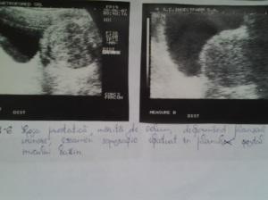 Hipertrofie prostatică. Hiperplazie nodulară focală benignă (HNFB). Adenom de prostată. Noduli prostatici de regenerare izo- și hipoecogeni. Noduli hiperplazici hiperecogeni;  Capsula chirurgicală. Chiste prostatice. Calcificări prostatice. Corpi amilacei și/sau acini glandulari degenerați. Adenom de prostată cu aspect pseudotumoral, deformând planșeul vezical. Sindrom de retenție urinară. Sindrom obstructiv subvezical. Sindrom de stază vezicală, faza compensată și decompensată. Hipertrofie de mușchi detrusor vezical. Atrofie de perete vezical. Diverticuli vezicali. Calculi vezicali. Sediment vezical. Sondă endovezicală. Reflux vezico-ureteral. Hidronefroză bilaterală și simetrică. Uretero-hidronefroza. Prostată după adenomectomie prin rezecție transuretrală (TUR) (VII); Ecografie în scară gri; Arhivă personală; 2004-2008; 2004-2015; Ultrasonografie; Fotografiile mele șoseaua Pantelimon 302; sectorul 2; București. publicat de Bot Eugen. 16.06.2015; 18:43