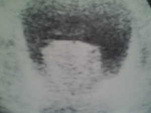 Hipertrofie prostatică. Hiperplazie nodulară focală benignă (HNFB). Adenom de prostată. Noduli prostatici de regenerare izo- și hipoecogeni. Capsula chirurgicală. Chiste prostatice. Calcificări prostatice. Corpi amilacei și/sau acini glandulari degenerați. Adenom de prostată cu aspect pseudotumoral, deformând planșeul vezical. Sindrom de retenție urinară. Sindrom obstructiv subvezical. Sindrom de stază vezicală, faza compensată și decompensată. Hipertrofie de mușchi detrusor vezical. Atrofie de perete vezical. Diverticuli vezicali. Calculi vezicali. Sediment vezical. Sondă endovezicală. Reflux vezico-ureteral. Hidronefroză bilaterală și simetrică. Uretero-hidronefroza. Prostată după adenomectomie prin rezecție transuretrală (TUR) (IX); Ecografie în scară gri; Arhivă personală; 2004-2008; 2004-2015; Ultrasonografie; Fotografiile mele; șoseaua Pantelimon 302; sectorul 2; București. publicat de Bot Eugen. 18:31