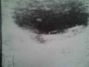 Hipertrofie prostatică. Hiperplazie nodulară focală benignă (HNFB). Adenom de prostată. Noduli prostatici de regenerare izo- și hipoecogeni. Capsula chirurgicală. Chiste prostatice. Calcificări prostatice. Corpi amilacei și/sau acini glandulari degenerați. Adenom de prostată cu aspect pseudotumoral, deformând planșeul vezical. Sindrom de retenție urinară. Sindrom obstructiv subvezical. Sindrom de stază vezicală, faza compensată și decompensată. Hipertrofie de mușchi detrusor vezical. Atrofie de perete vezical. Diverticuli vezicali. Calculi vezicali. Sediment vezical. Sondă endovezicală. Reflux vezico-ureteral. Hidronefroză bilaterală și simetrică. Uretero-hidronefroza. Prostată după adenomectomie prin rezecție transuretrală (TUR) (XII); Ecografie în scară gri; Arhivă personală; 2004-2008; 2004-2015; Ultrasonografie; Fotografiile mele; publicat de Bot Eugen. șoseaua Pantelimon 302; sectorul 2; București. 23.06.2015; 18:31