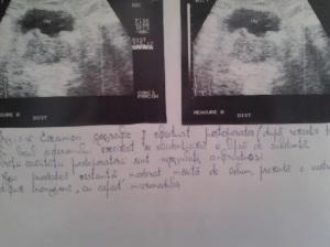 Hipertrofie prostatică. Hiperplazie nodulară focală benignă (HNFB). Adenom de prostată. Noduli prostatici de regenerare izo- și hipoecogeni. Capsula chirurgicală. Chiste prostatice. Calcificări prostatice. Corpi amilacei și/sau acini glandulari degenerați. Adenom de prostată cu aspect pseudotumoral, deformând planșeul vezical. Sindrom de retenție urinară. Sindrom obstructiv subvezical. Sindrom de stază vezicală, faza compensată și decompensată. Hipertrofie de mușchi detrusor vezical. Atrofie de perete vezical. Diverticuli vezicali. Calculi vezicali. Sediment vezical. Sondă endovezicală. Reflux vezico-ureteral. Hidronefroză bilaterală și simetrică. Uretero-hidronefroza. Prostată după adenomectomie prin rezecție transuretrală (TUR) (XIII). Ecografie în scară gri; Arhivă personală; 2004-2008; 2004-2015; Ultrasonografie; Fotografiile mele; șoseaua Pantelimon 302; sectorul 2; București. publicat de Bot Eugen. 24.06.2015; 19:36