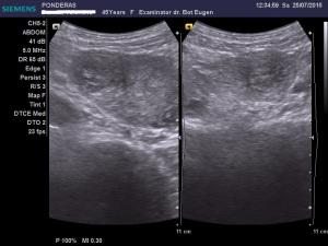 Fibroame uterine. Leiomiomul (III); Fibroame uterine interstițiale și subseroase cu degenerescență edematoasă; noduli fibromatoși interstițiali vascularizați; Ecografie în scară gri; Ecografie Doppler codificată color; Ecografie Doppler codificată spectral; Ecografie Doppler power; Arhivă personală 2004-2015; Ultrasonografie; Fotografiile mele; publicat de Bot Eugen. șoseaua Pantelimon 302; sectorul 2; București. 26.07.2015; 11:17