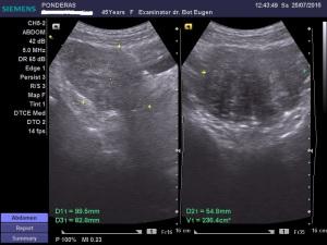 Fibroame uterine. Leiomiomul (III); Fibroame uterine interstițiale și subseroase cu degenerescență edematoasă; noduli fibromatoși interstițiali vascularizați; Ecografie în scară gri; Ecografie Doppler codificată color; Ecografie Doppler codificată spectral; Ecografie Doppler power; Arhivă personală 2004-2015; Ultrasonografie; Fotografiile mele; publicat de Bot Eugen. șoseaua Pantelimon 302; sectorul 2; București. 26.07.2015; 11:34