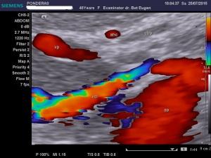 Artera hepatică comună: anomalii de traiect și de poziție (V); Arhivă personală 2004-2015; Ecografie în scară gri; Ecografie Doppler codificată color; Ecografie Doppler codificată spectral; publicat de Bot Eugen. șoseaua Pantelimon 302; sectorul 2; București. 25.07.2015; 19:41