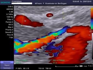 Artera hepatică comună: anomalii de traiect și de poziție (V); Arhivă personală 2004-2015; Ecografie în scară gri; Ecografie Doppler codificată color; Ecografie Doppler codificată spectral; publicat de Bot Eugen. șoseaua Pantelimon 302; sectorul 2; București. 25.07.2015; 19:42