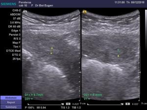 dr-bot-eugen_12-8-2016-11-28-34_13