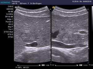 dr-bot-eugen_8-8-2016-12-40-38_279