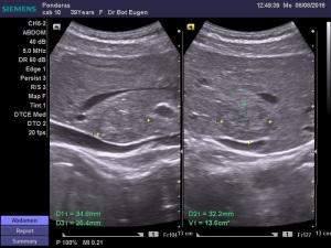 dr-bot-eugen_8-8-2016-12-40-38_47